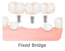 Dental Bridges Tooth Replacement Holladay Utah