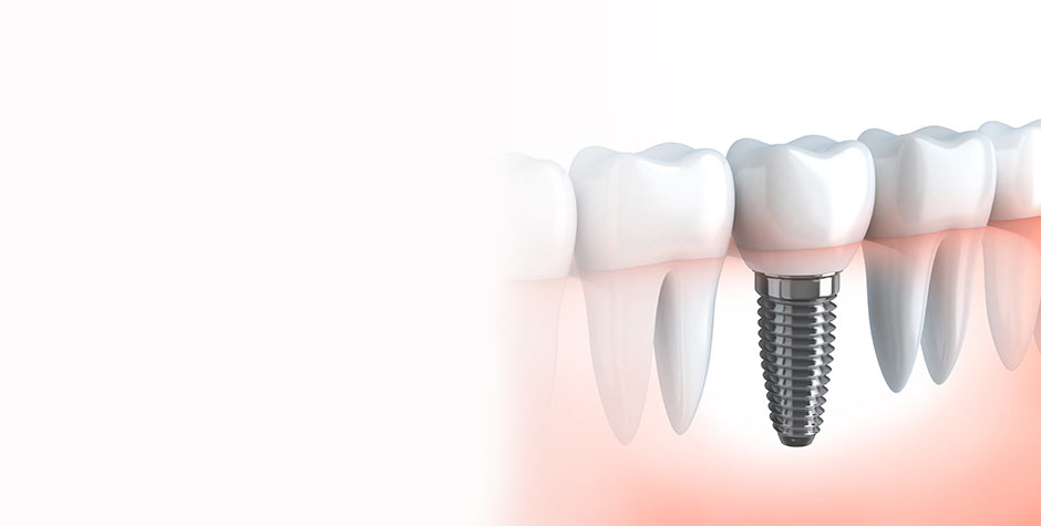 Implant Dentist Salt Lake